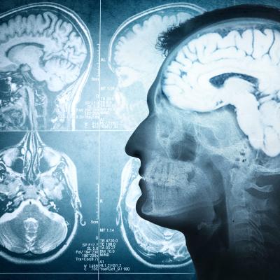 Investigación - Neurología